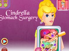 Cinderella Stomach Surgery